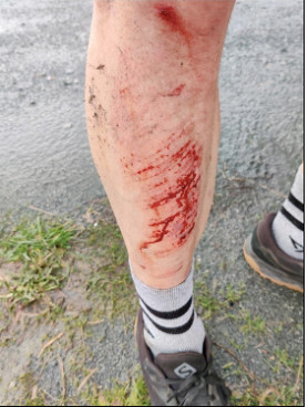 Professional runner nearly killed by pickup driver on rural Chilliwack road